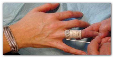 Использование нитей для снятие кольца с опухшего пальца