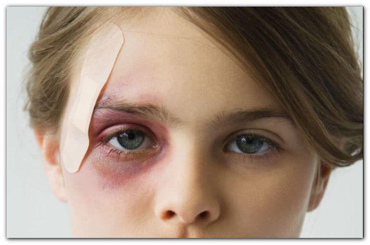 Способы эффективного удаления синяка и отека у глаза после удара