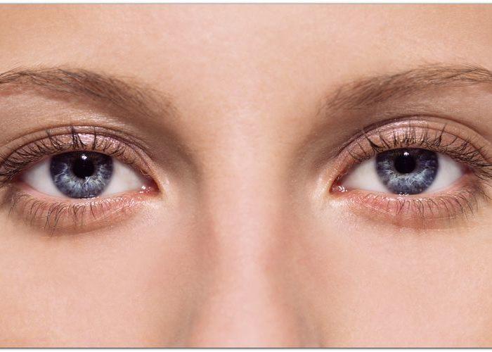 Способы устранения аллергических отеков глаз
