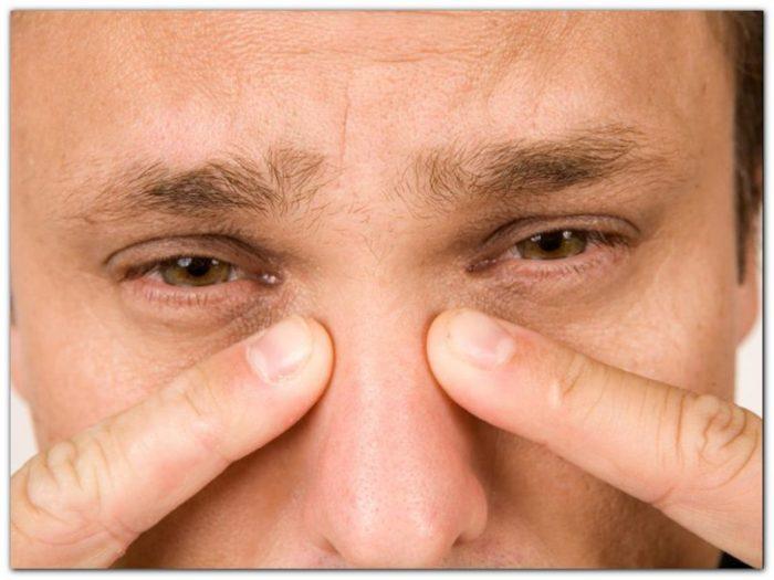 Причины опухания переносицы, методы устранения отеков